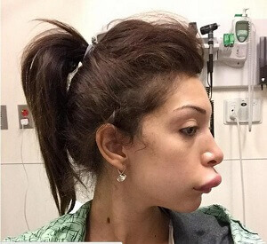 Farrah Abraham Got the Worst Lip Injections of All Time