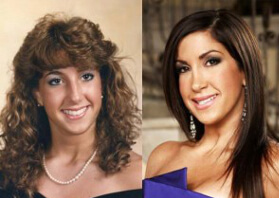 Jacqueline Laurita from 'Real Housewives of New Jersey' Opts for Plastic Surgery