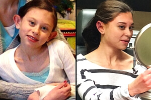 From Dumbo to Delighted: Bullied Girl Receives Free Plastic Surgery