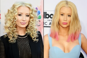 Iggy Azalea Gets Even More Fancy with Rumored Facial Plastic Surgery