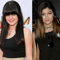 Kylie and Kendall Jenner Plastic Surgery Reports
