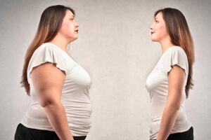 If You're Overweight, You May Want to Reconsider Plastic Surgery