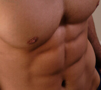 Abdominal Implants: The Six Pack Shortcut