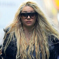 Amanda Bynes: Another Celebrity 'Nose'-dive