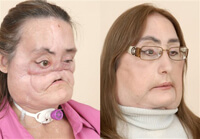 Face Transplant Patient Connie Culp Steps Into Spotlight
