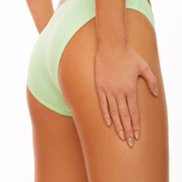 fractional laser stretch mark removal Low Price Stretchmark Removal Products