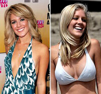 Heidi Montag Before & After: Her Plastic Surgery Timeline