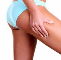 Non-Surgical Butt Augmentation: Worth the Risk?