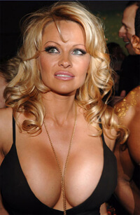 the 10 or 20 most famous breast implants of all time