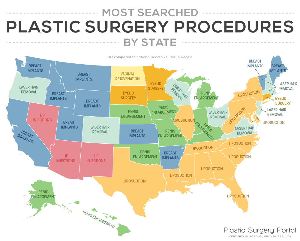 Popular Plastic Surgeries by State