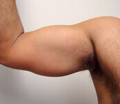An Introduction to Tricep Implants