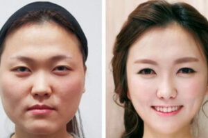 South Korea's Billion Dollar Plastic Surgery Business
